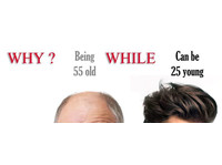 """Hair replacement and hair treatment """" Elite Image"""" (2) - Wellness & Beauty"""