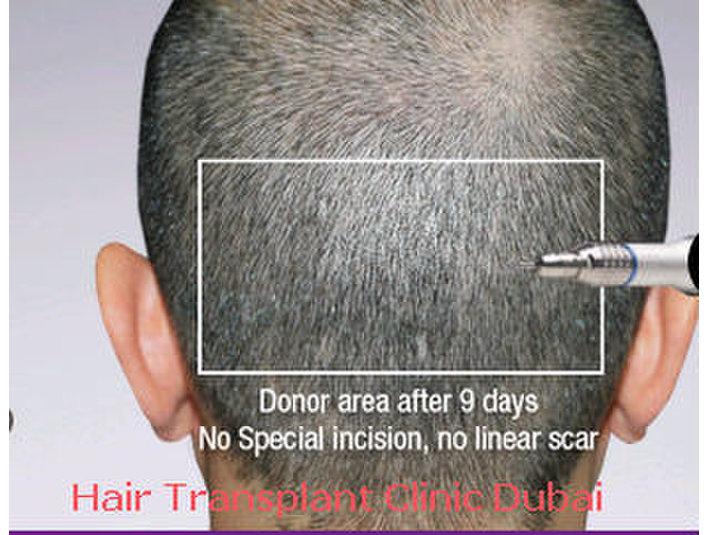 Hair Transplant Clinic Dubai - Hospitals & Clinics