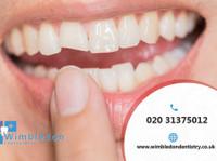 Wimbledon Dentist (8) - Dentists