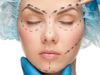 Plastic Surgery Overseas - Cosmetic & Plastic surgery abroad (2) - Cosmetic surgery