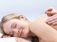 Holistic Health and Healing Ltd (1) - Acupuncture