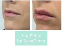 LasaDerm (1) - Cosmetic surgery
