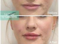 LasaDerm (3) - Cosmetic surgery