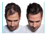 SureThik International (3) - Parrucchieri
