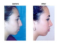 Allure Plastic Surgery (5) - Cosmetic surgery